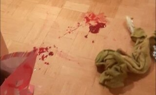 Сломанная челюсть: нарушившие ночной покой подростки обвиняют полицию в насилии
