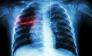 Täna on ülemaailmne tuberkuloosipäev: mis see üldse on ja kuidas mitte nakatuda?