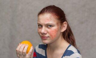 Arstid: toidutalumatuse testide efektiivsust pole suudetud tõestada