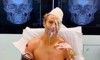 ВИДЕО: Жесточайший нокаут! Боец ММА провел 9 часов на операционном столе