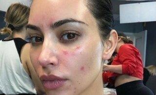 Ким Кардашьян показала обезображенное псориазом лицо