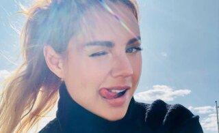 ЖУТКИЕ ФОТО: Певица МакSим пострадала в ДТП