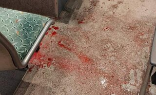 ФОТО | Мужчина залил кровью весь автобус — на него напали