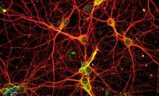 VIDEO | Vaata, kuidas aju puhastab end surnud neuronitest