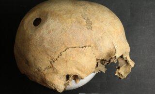 Eestist leitud keskaegsed opereeritud koljud näitavad omaaegsete kirurgide täpset kätt