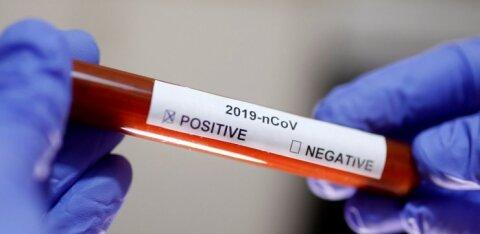 Департамент здоровья: еще пять анализов на коронавирус оказались отрицательными