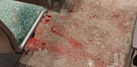 ФОТО   Мужчина залил кровью весь автобус — на него напали