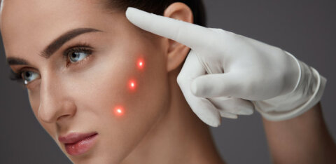 4D laser toob nooruse tagasi