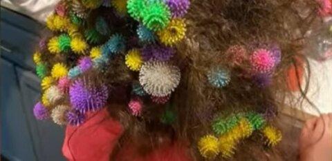 ФОТО И ВИДЕО | У ребенка в волосах застряли 150 деталей конструктора. Родители требуют запретить игрушку