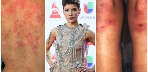 FOTOD | Kohutav! Mis põhjustas kuulsale poplauljatarile nii karmid vigastused?