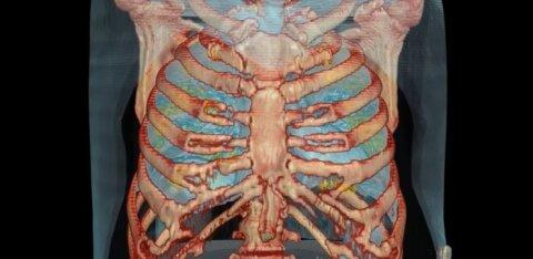 ВИДЕО   Как коронавирус поражает легкие инфицированного человека всего за пару дней